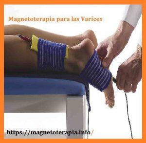 magnetoterapia para las varices