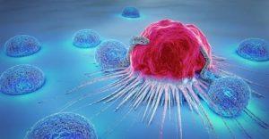 magnetoterapia para el cancer