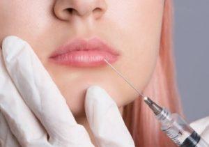 acido hialuronico labios efectos secundarios